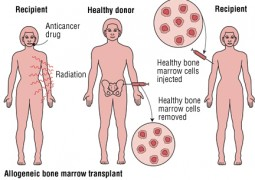 bone-marrow transplantation