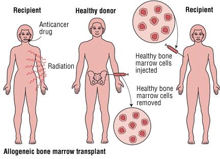 Yashoda Hospital performed the first half-matched bone marrow transplant