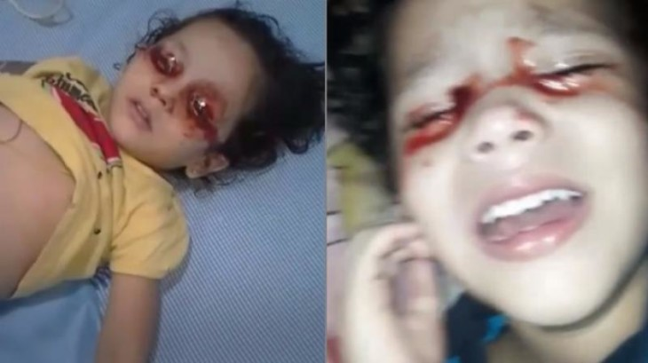 Artemis Hospital offers free medical aid to Hyderabad toddler who bleeds from her eyes